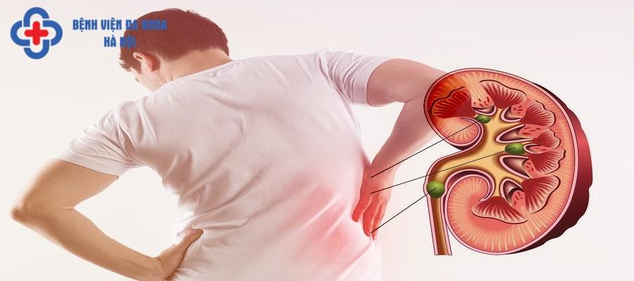 Đau lưng và đau bụng thường xuất hiện khi đau sỏi thận