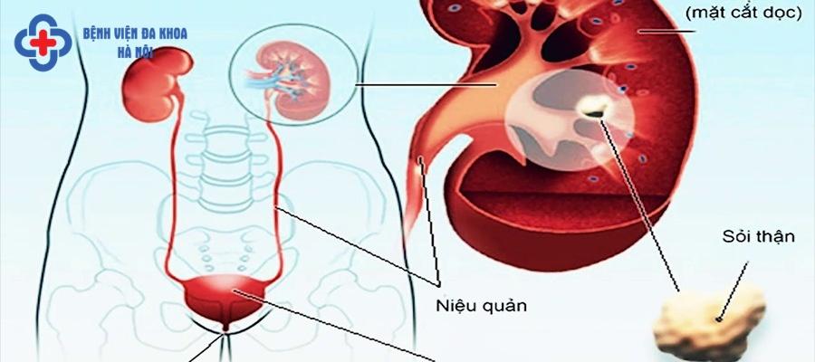 Hệ tiết niệu thường xuất hiện những căn bệnh nguy hiểm