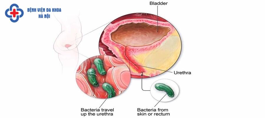 Nhiễm trùng đường tiểu là một trong các biến chứng khi tiểu không tự chủ