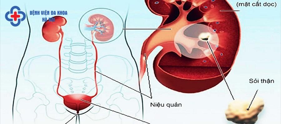 Sỏi tiết niệu là tên gọi chung khi sỏi xuất hiện tại các bộ phận trong hệ tiết niệu